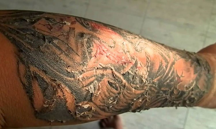 Tattoo Peeling