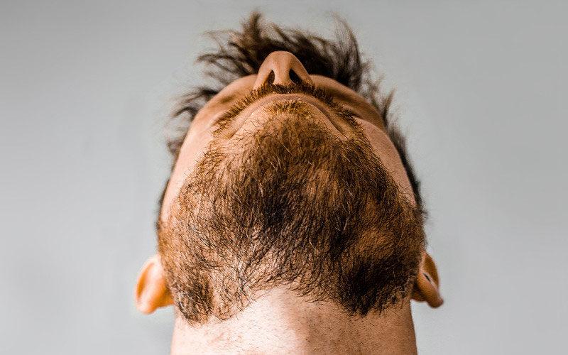 Long Patchy Beard